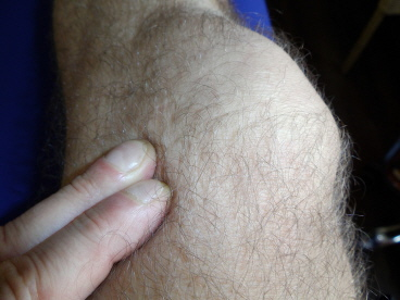 Friktionsmassage am Knie